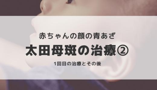 赤ちゃんの太田母斑②  レーザー治療【写真あり】